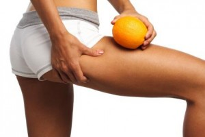 Cellulite: causes and cure