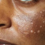 Hyperpigmentation: How to Properly Treat and Prevent It for Glowing Skin