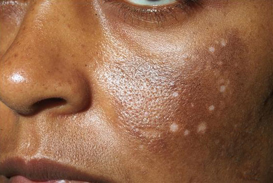 Hyperpigmentation How To Properly Treat And Prevent It