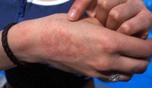 Types Of Heat Rash: Skin Beauty and Heat Rash Forms
