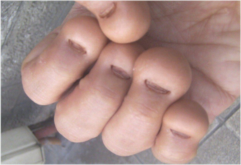 8 Harmful Effects Of Biting Your Fingernails To Your Health