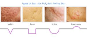Types Of Acne Skin & Acne Treatment Options
